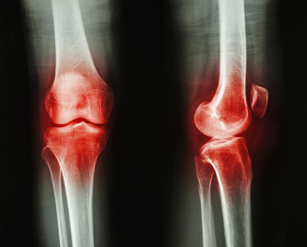 Outer lateral side of knee cartilage is torn so there is no space between femer and tibia in that region, what is the best advice for this?