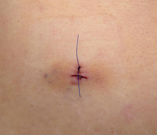 How to get rid of the trapped wind after a laparoscopy??