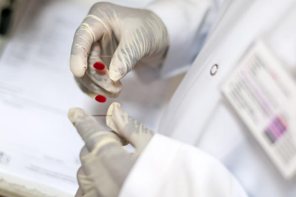 How would blood tests show liver damage from obesity?