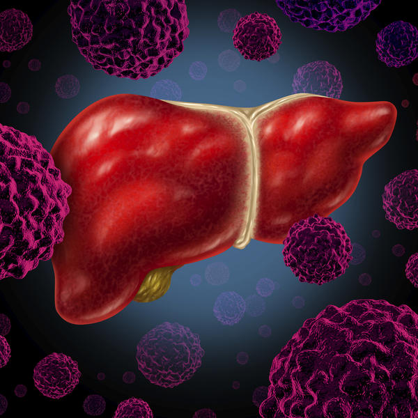 Does a normal liver biopsy rule out alcoholic liver disease?
