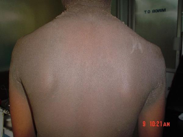 What's the best treatment for acanthosis nigricans?