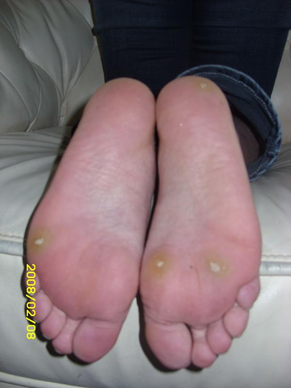 Is it possible if exposed to genital warts that u r bound to get them too? And if I end up getting them..what is the least painful treatment? Thanks.