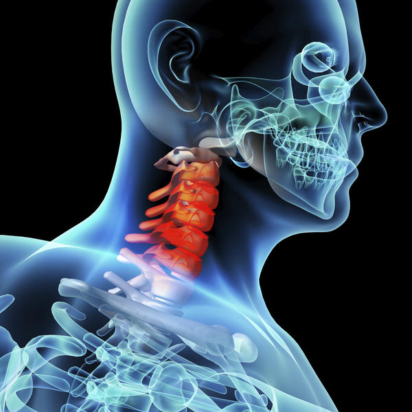 Would an infected tonsil or a stone cause a pain in the back of the neck and sore swellen, achy upper spine? And tight muscles in the upper back?