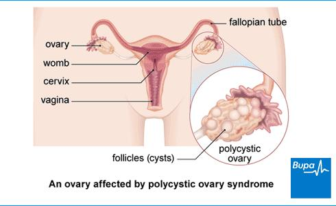Can you have pcos with no symptoms?
