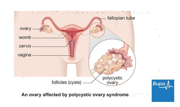 Can you still get pregnant after being diagnosed with polycystic ovarian syndrome?