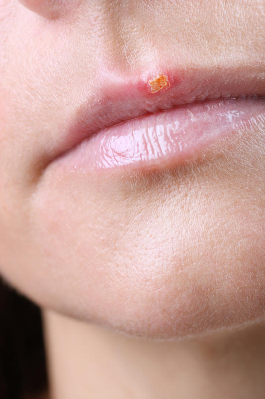 Herpes, cold sore, pimple, or something else, what's wrong?