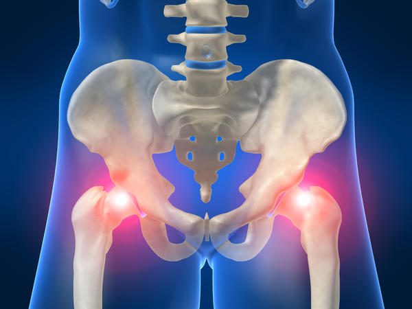 What cause is fluid in pelvis?