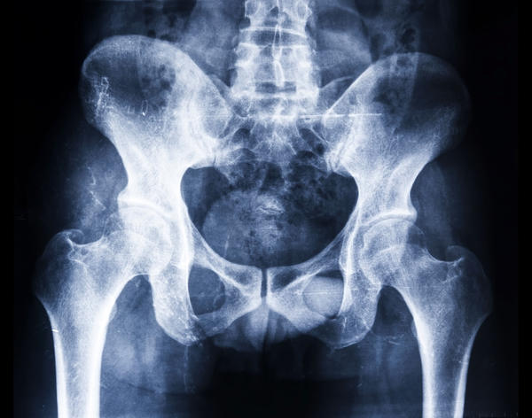 Can pelvic heaviness be a symptom of a pelvic support problem?