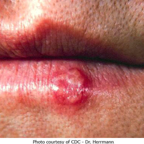 I have a rash with blisters on my nose. Is that a typical symptom of herpes simplex?