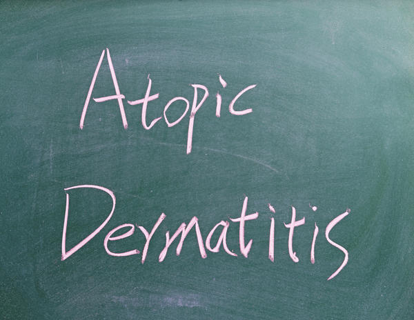 Could I have atopic dermatitis or just atopic skin that is dry in winter?