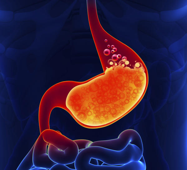 What can lead to, or is associated with Gastroesophageal reflux disease?