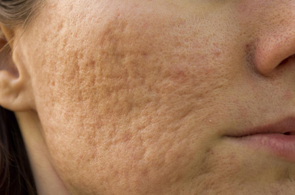 How can you treat dark acne scarring?