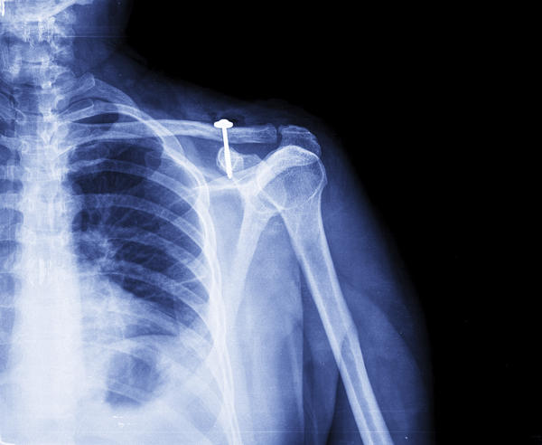 How can tell if you're shoulder is dislocated?