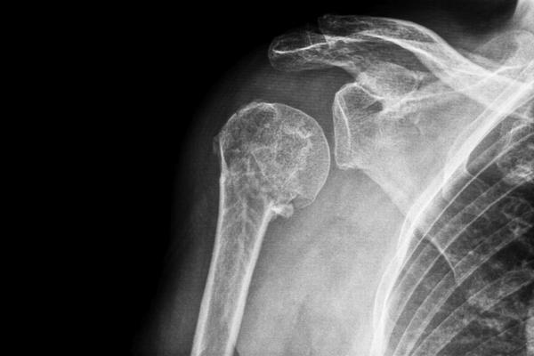 How could I heal a dislocated shoulder fast?