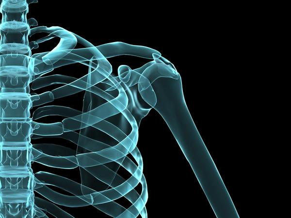 What causes shoulder tendonitis?