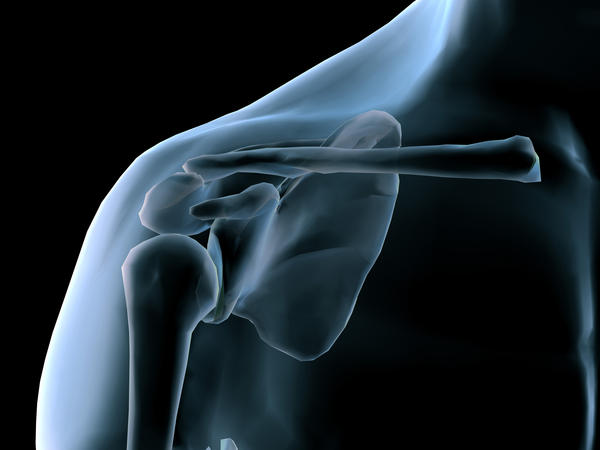 Is bursitis and shoulder impingement the same thing and what are the best treatment options for permanent relief