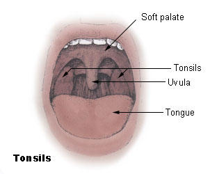 What are the symptoms of enlarged tonsils?