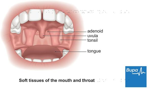 What is a hard painless lump in roof of mouth and sore throat?