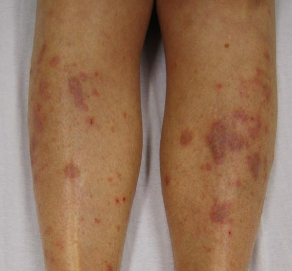 I have a rash on my shins and hip areas. I am diabetic.?