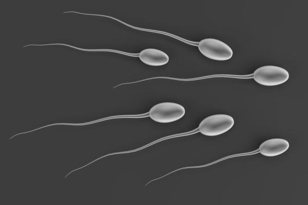 My husband semen analysis test showed 100% abnormal sperm, 38% motility and 11.4 mil sperm count. Can we conceive normally without IVF?