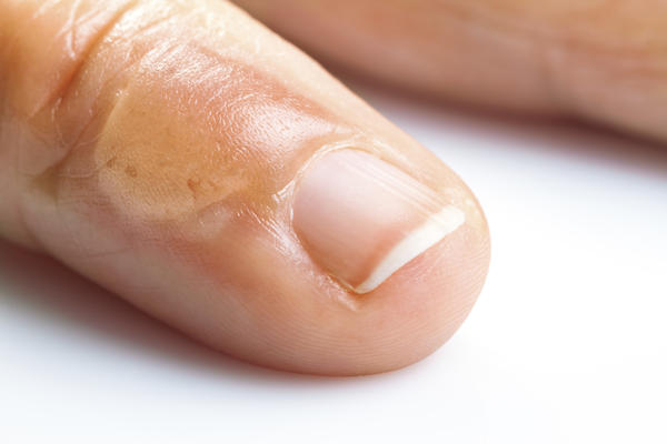 How can one treat a swollen finger joint?