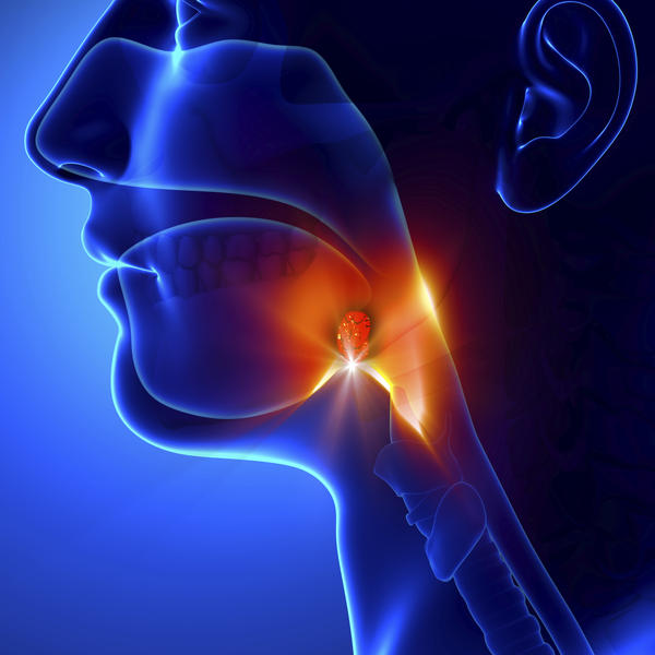 Can strep throat cause swollen lymph glands all over body?