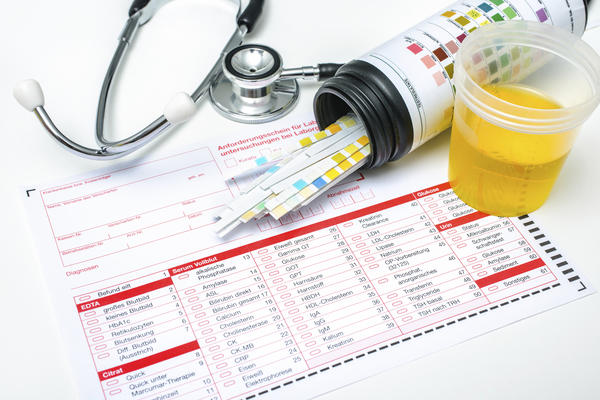 What does the 24-hour urine test check for?