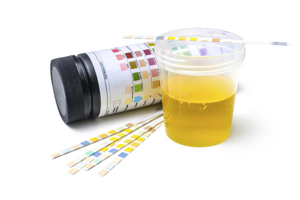 What dose Amber color of urine mean !?