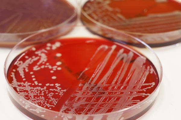 What does culture yielded growth of staphylococcus aureus mean?