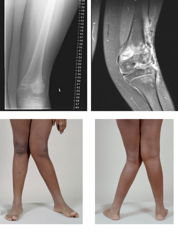 "What does ""left distal femoral osteotomy genu valgum"" mean?"