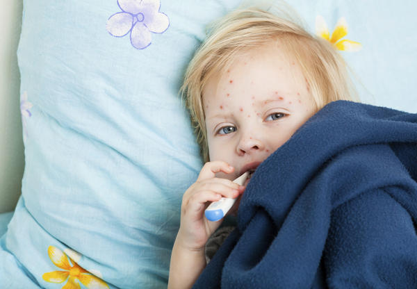 Can a child have chicken pox even if she has been vaccinated?