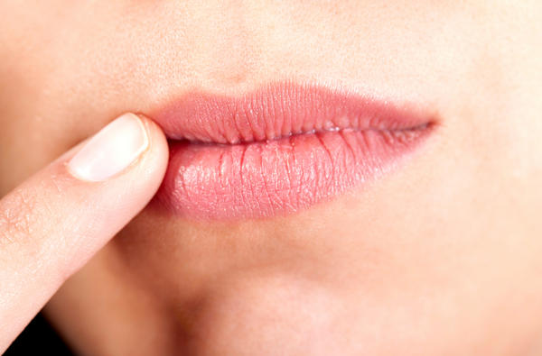 What can cause angular cheilitis?