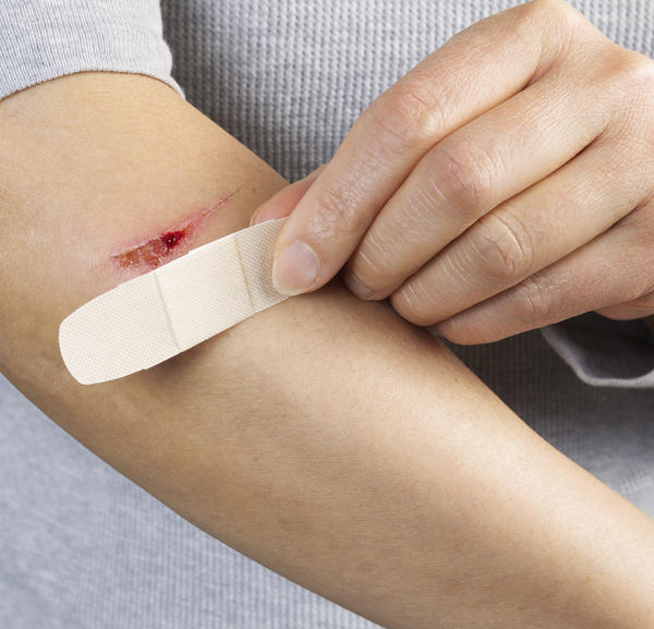 What should I do for a wound infection?