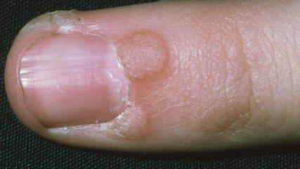 Can a wart be removed from the male genitalia ?