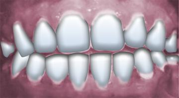 How do you tell the difference between gingivitis and periodontitis?