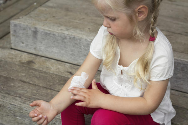 What are the symptoms of chicken pox in a child who has been vaccinated already?
