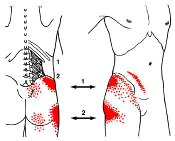 Why is there pain in the right side of the body and lower back after a partial colectomy?
