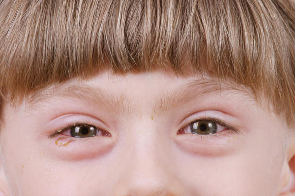 What  should I do about my 5 yr. Olds itchy, red and swollen allergy eyes ? Over the counter eye drops don't help. He takes benedrly and zyrtec (cetirizine)
