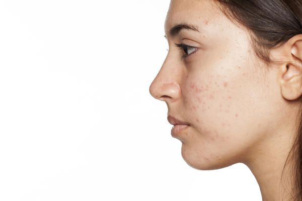 Good day, what skin products can buy for face acne and marks caused by acne?