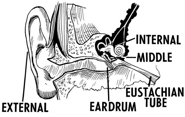 Infected back ear cyst. Decreased hearing throbbing vertigo & wooshing sound for 2 yrs. 300mg clindamycin& appt w/ ENT. Possible cholesteatoma?
