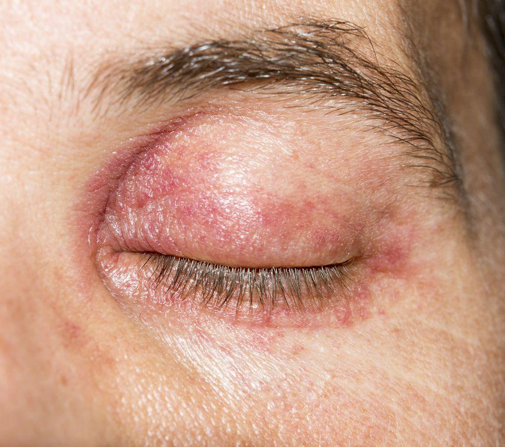 Eyelid Inflammation Blepharitis Answers On Healthtap