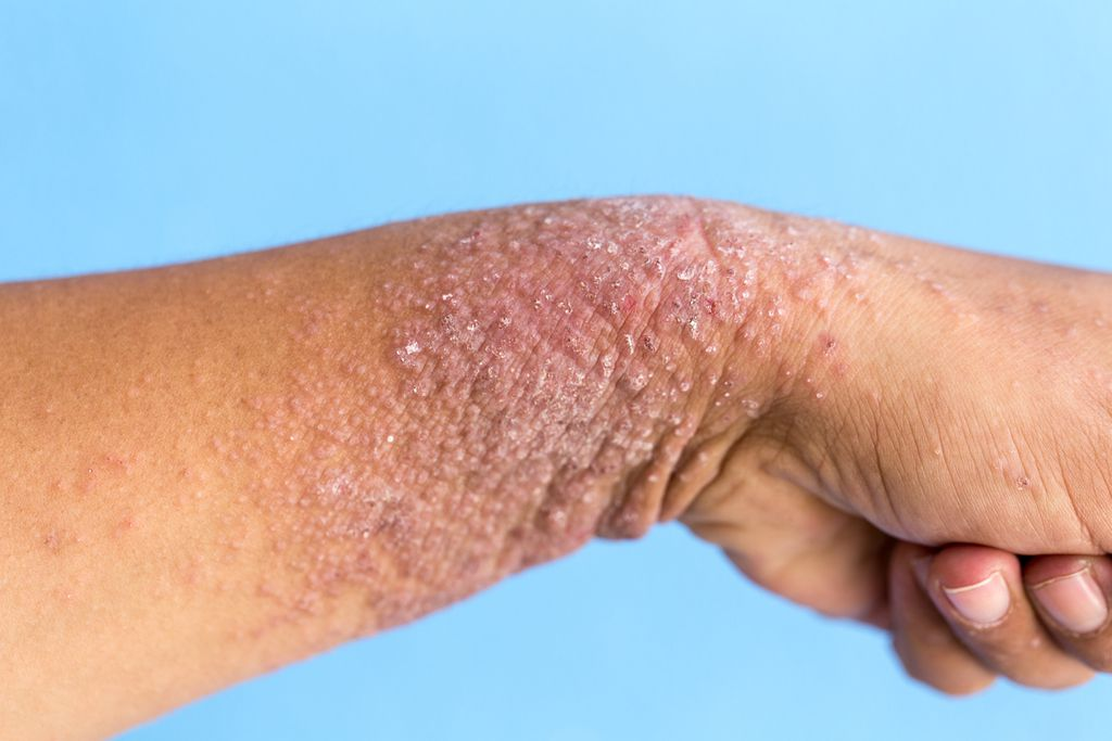 Lichen simplex chronicus - Answers on HealthTap
