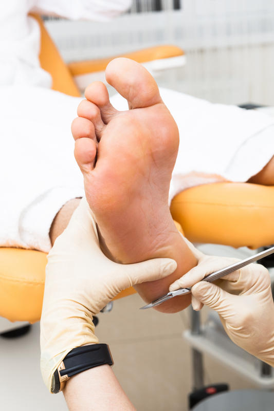 What is the best treatment for foot swelling?