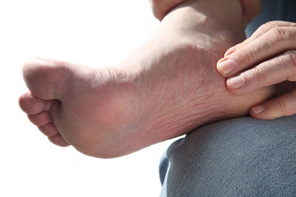 Which treatment works the best and fastest for foot swelling?