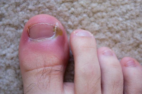 What do to for an ingrown toenail that became infected and pussing and a small red lump is now coming from the cuticle. ?