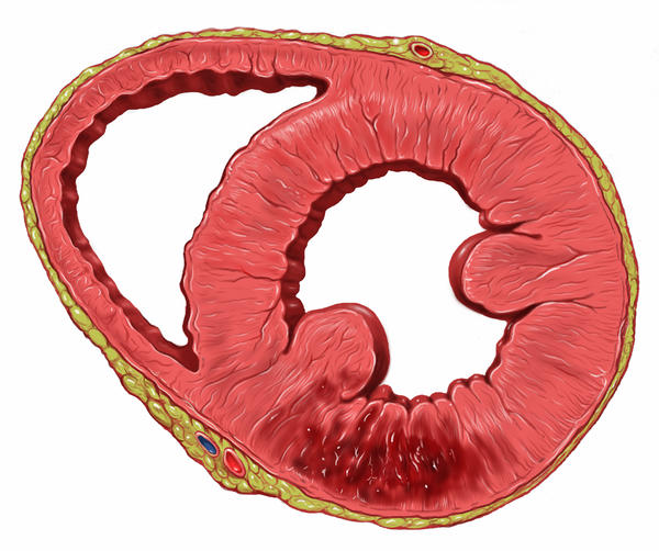 What is the prevalence of testicular damage/infarction in chronic epididymitis?