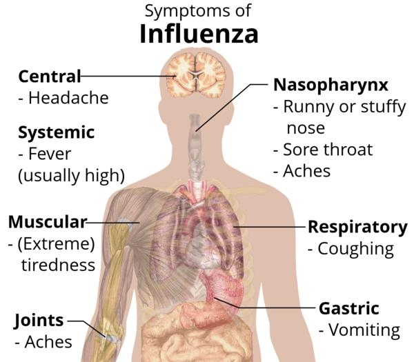 What could cause flu-like symptoms and seizures?