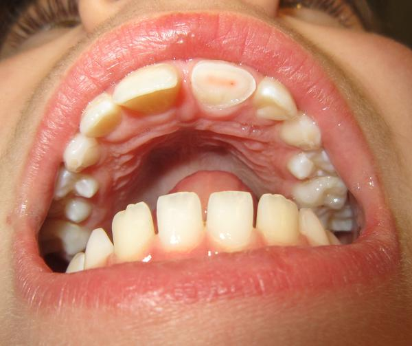 What does the roof of your mouth look like?