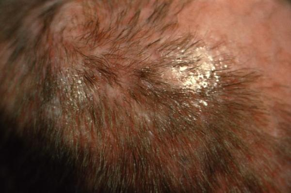 Which shampoos, vitamins, food, or any other product are recommended for males with thinning hair?