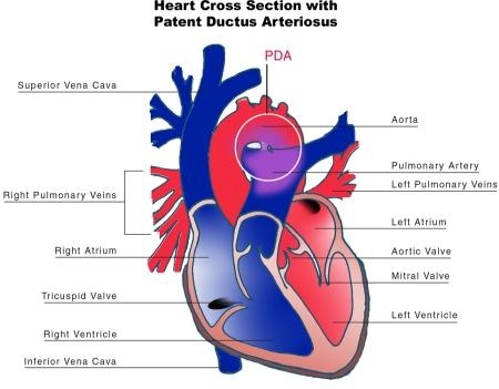 How do?You ?Treat patent ductus arteriosus?